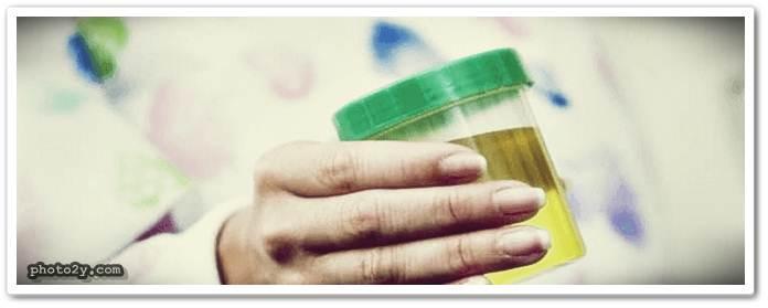 رائحة البول الكريهة عند الاطفال وعلاجها